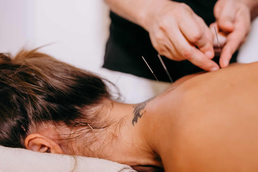Image of Acupuncture Services
